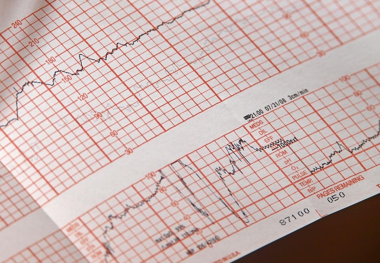 Complete Job Description of a Telemetry Nurse - Top RN to BSN